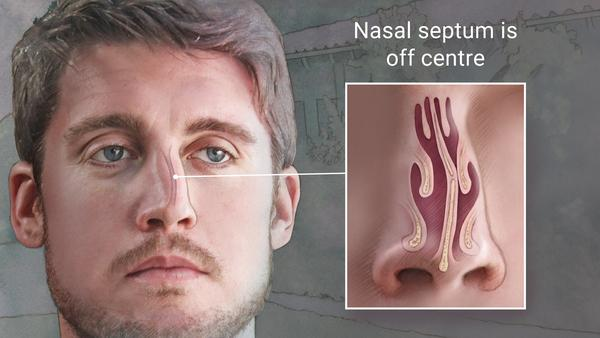 an image showing how a deviated septum looks like