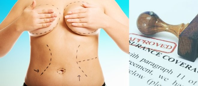 plastic surgery Covered by Insurance