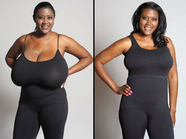 Photo showing before and after a breast reduction surgery
