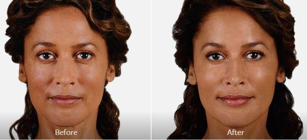 Juvederm before and after photo