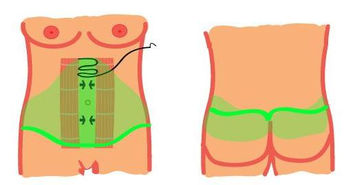 Incision extends from front to back like a belt