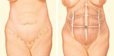full tummy tuck incision