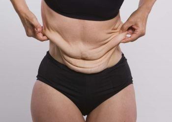 get lid of loose skin after weight loss